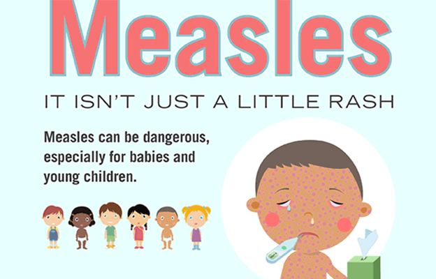 Here's When You Can Get A Free Measles Vaccine In Westchester
