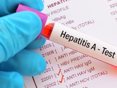 Hepatitis A outbreak in Ohio