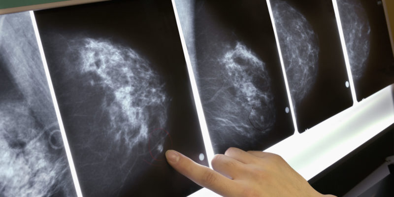AI tool at MIT may predict breast cancer 5 years earlier
