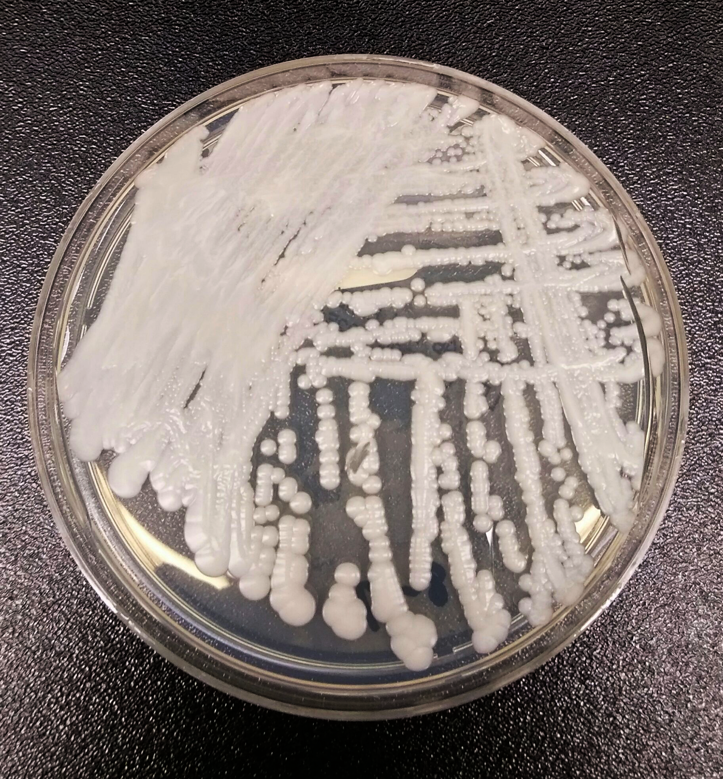 Climatic change may lead to Deadly fungal disease
