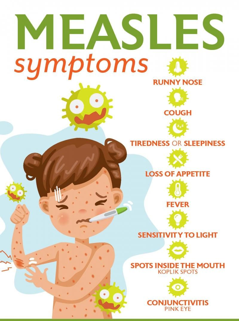 Measles case found in Ohio- Learn about the symptoms and prevention