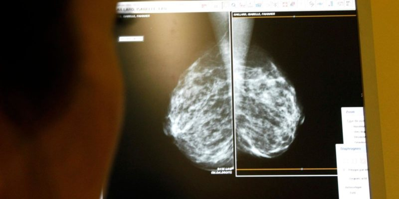 Breast Cancer Treatment Artificial intelligence to recognize breast cancer patterns