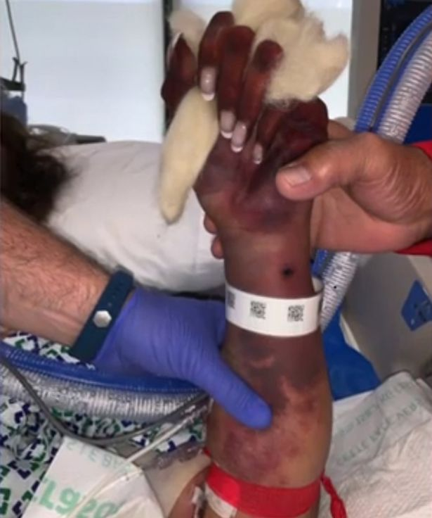 Woman Loses Her limbs to an Infection from Dog kisses