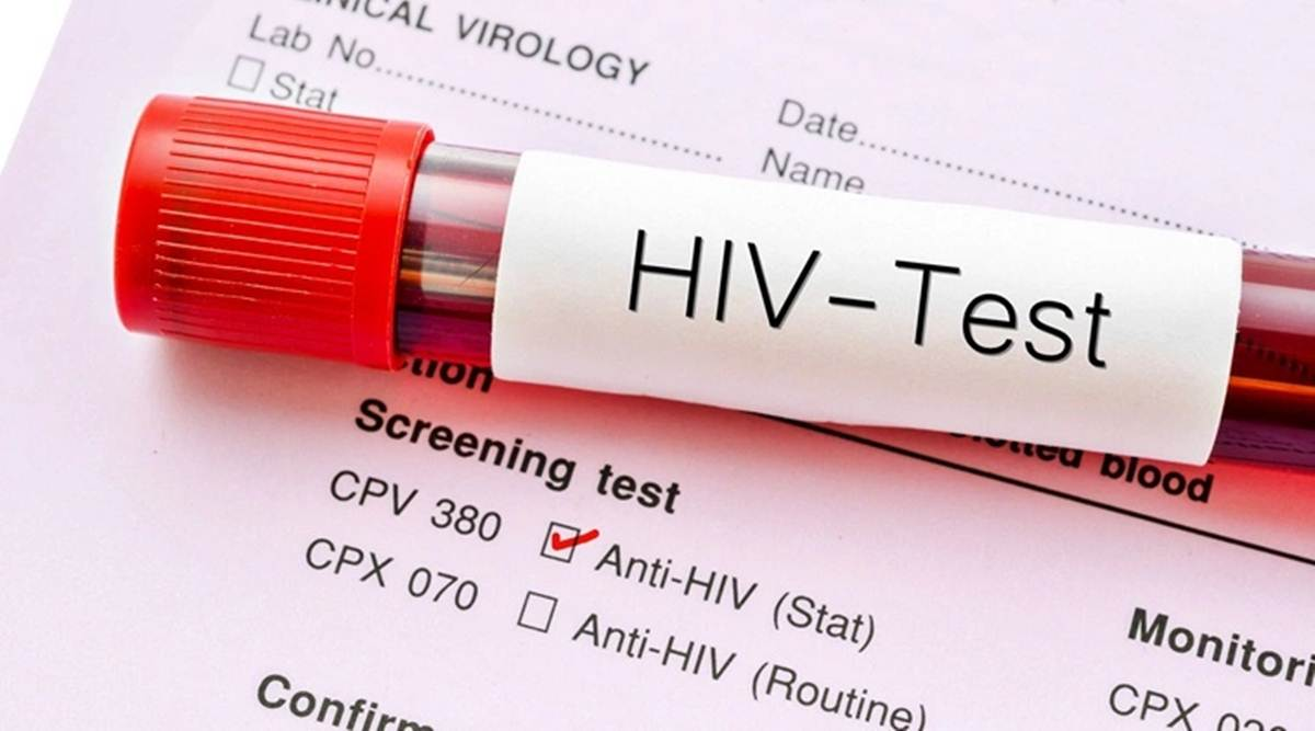 Research on HIV Infected Blood Cells