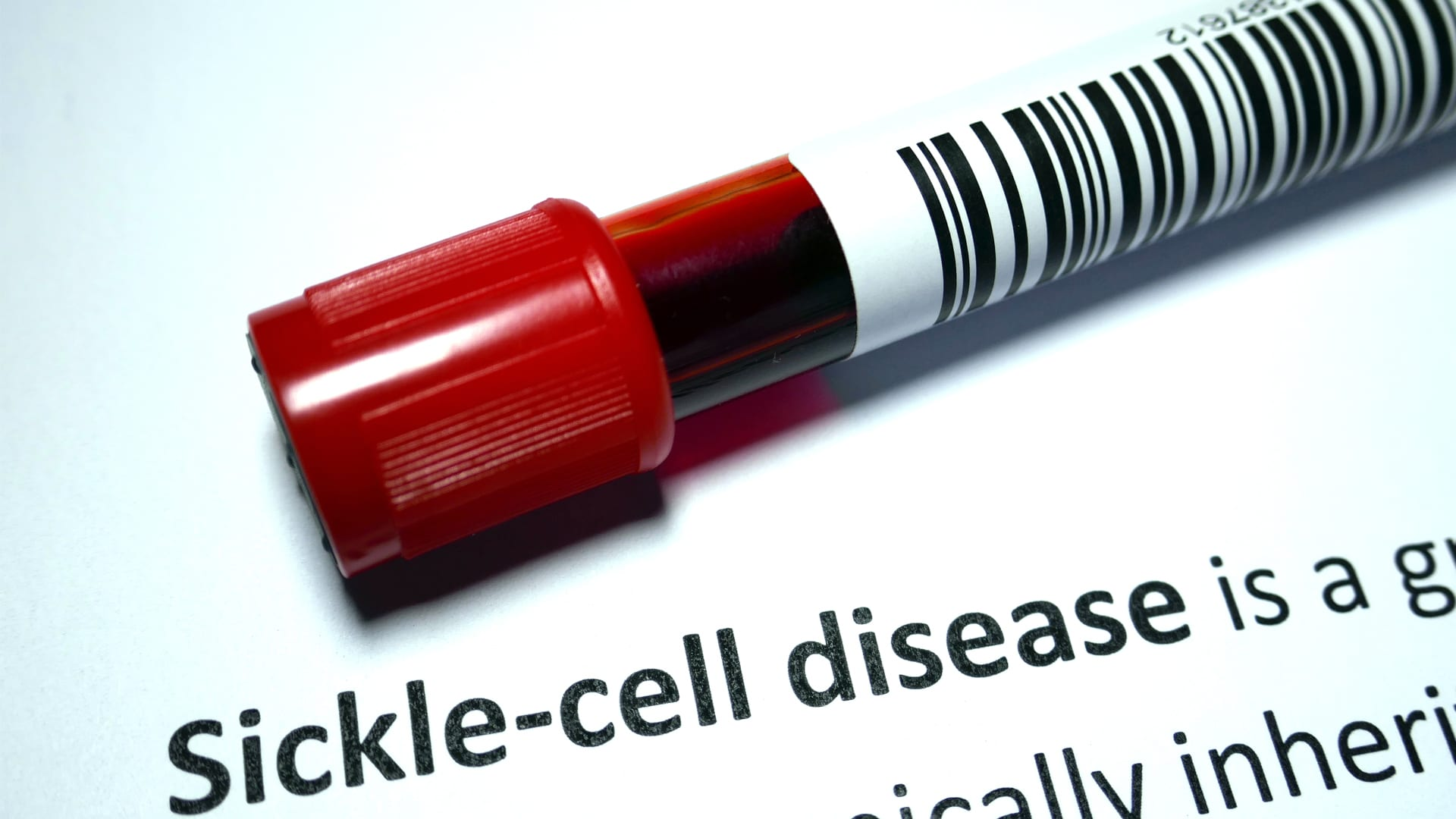 Cures for Sickle Cell Disease