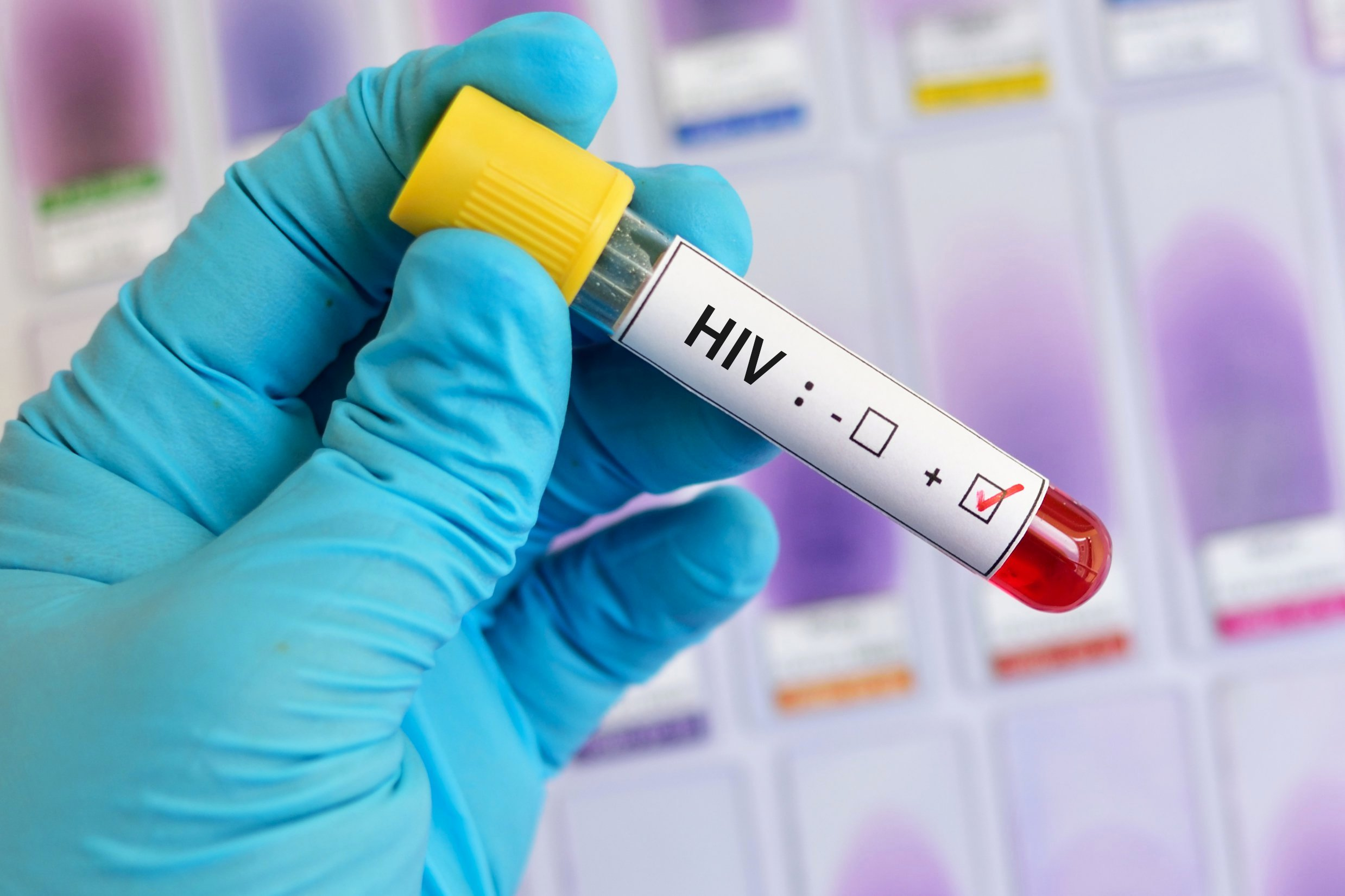 HIV AIDS Cure based on Diagnostics