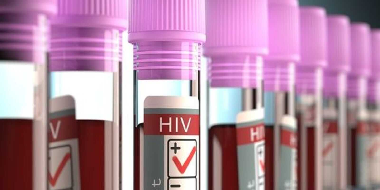 HIV Cure will be Available in the Market Soon