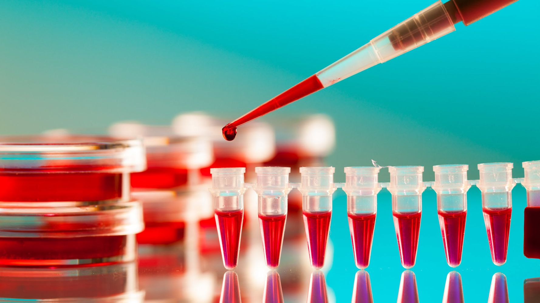 Sample Study on HIV Infected Patients