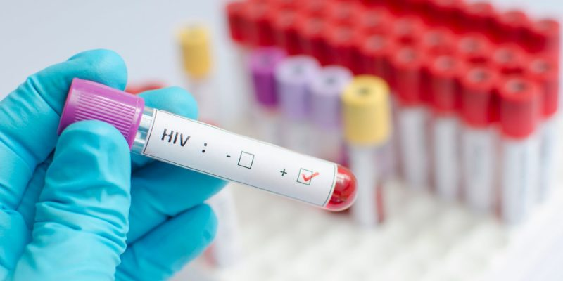 Cure for HIV AIDS Biotron Flagship Drug have Positive Results for Curing HIV