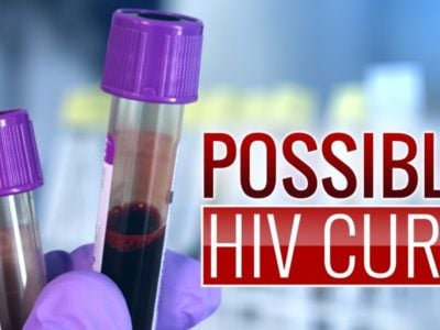 Cure for HIVAIDS Scientists Cure HIV in Animals, One Step Closer to Working Human Cure