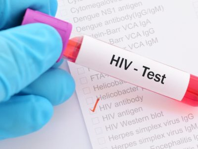 Cure for HIV-AIDS New Research to Cut Out HIV by Gene and Cell Method